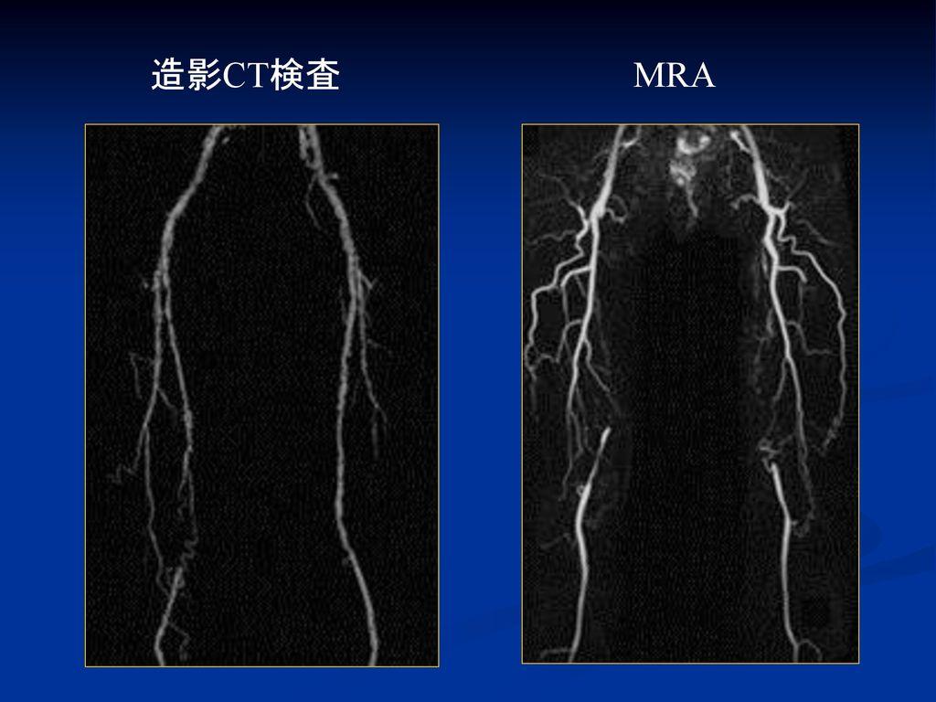造影CT検査 MRA