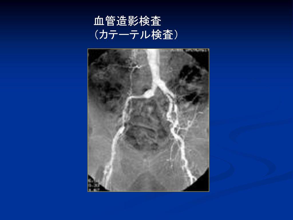 血管造影検査 (カテーテル検査)