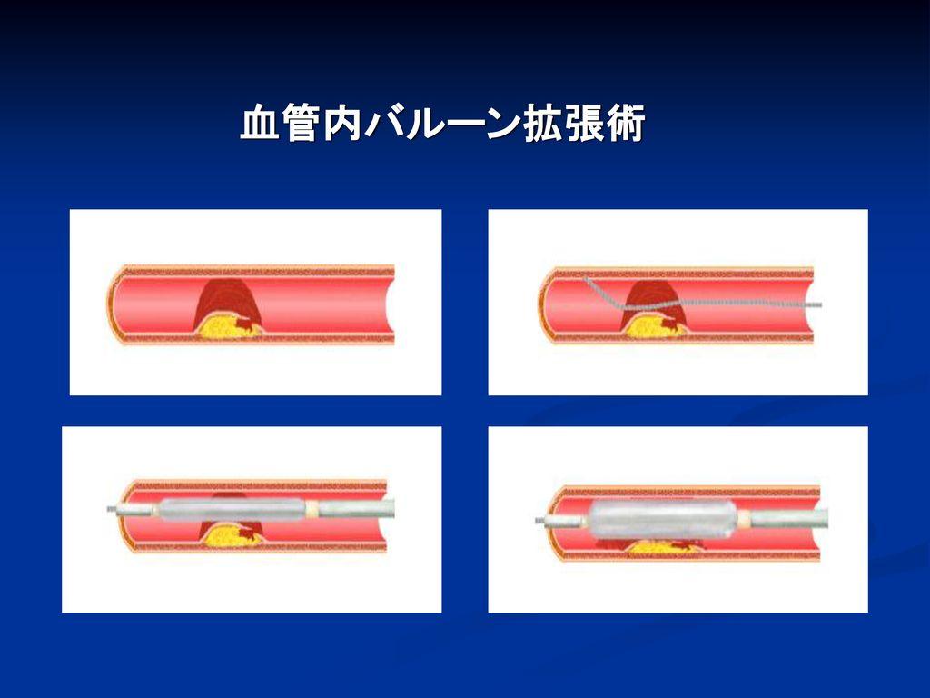 血管内バルーン拡張術