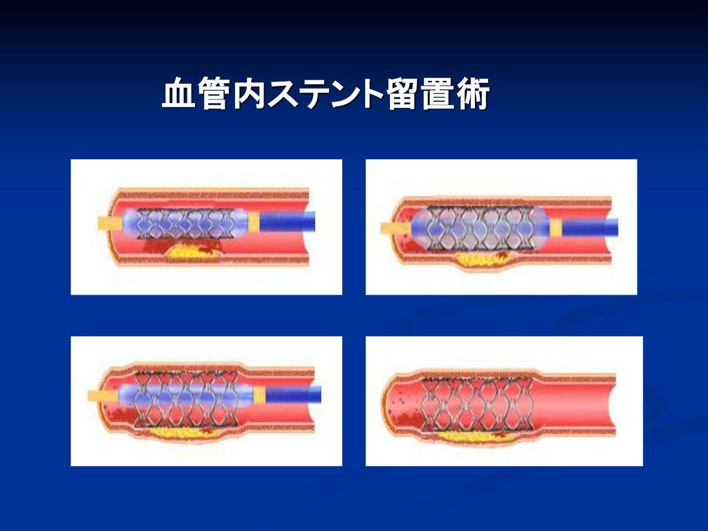 血管内ステント留置術