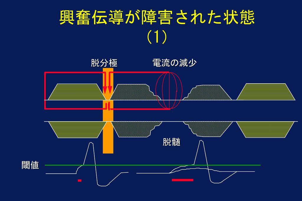 興奮伝導が障害された状態(1) 脱分極 電流の減少 脱髄 閾値