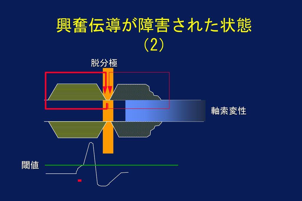 興奮伝導が障害された状態(2) 脱分極 軸索変性 閾値