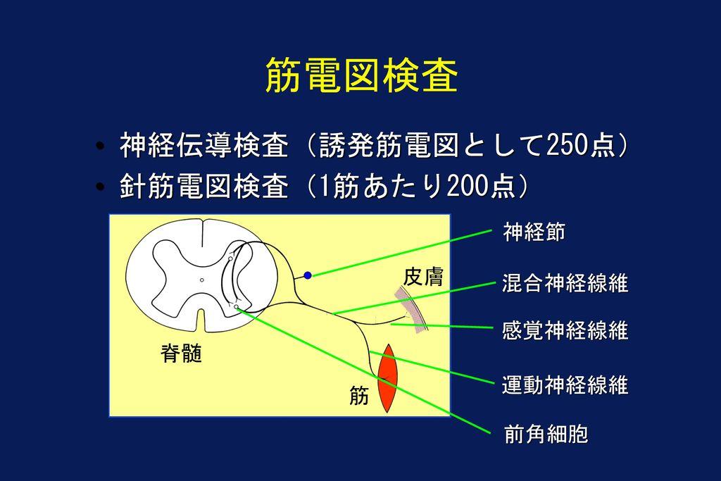 筋電図検査 神経伝導検査(誘発筋電図として250点) 針筋電図検査(1筋あたり200点) 神経節 皮膚 混合神経線維 感覚神経線維 脊髄
