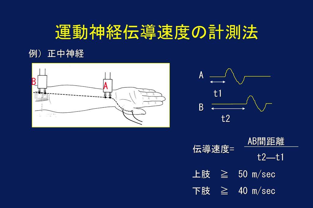 運動神経伝導速度の計測法 例)正中神経 A B A t1 B t2 AB間距離 伝導速度= t2―t1 上肢 ≧ 50 m/sec