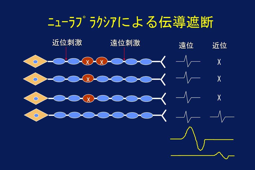ニューラプラクシアによる伝導遮断 近位刺激 遠位刺激 遠位 近位 x x X X x X x