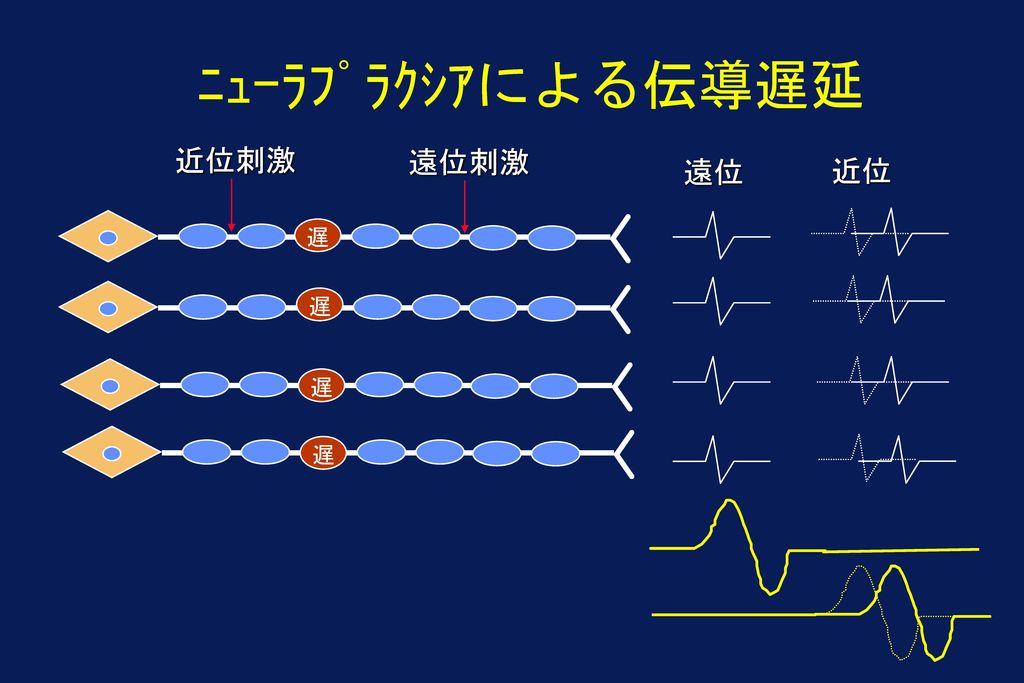ニューラプラクシアによる伝導遅延 近位刺激 遠位刺激 遠位 近位 遅 遅 遅 遅