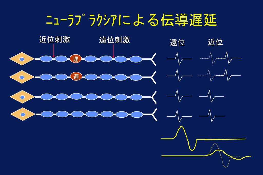 ニューラプラクシアによる伝導遅延 近位刺激 遠位刺激 遠位 近位 遅 遅