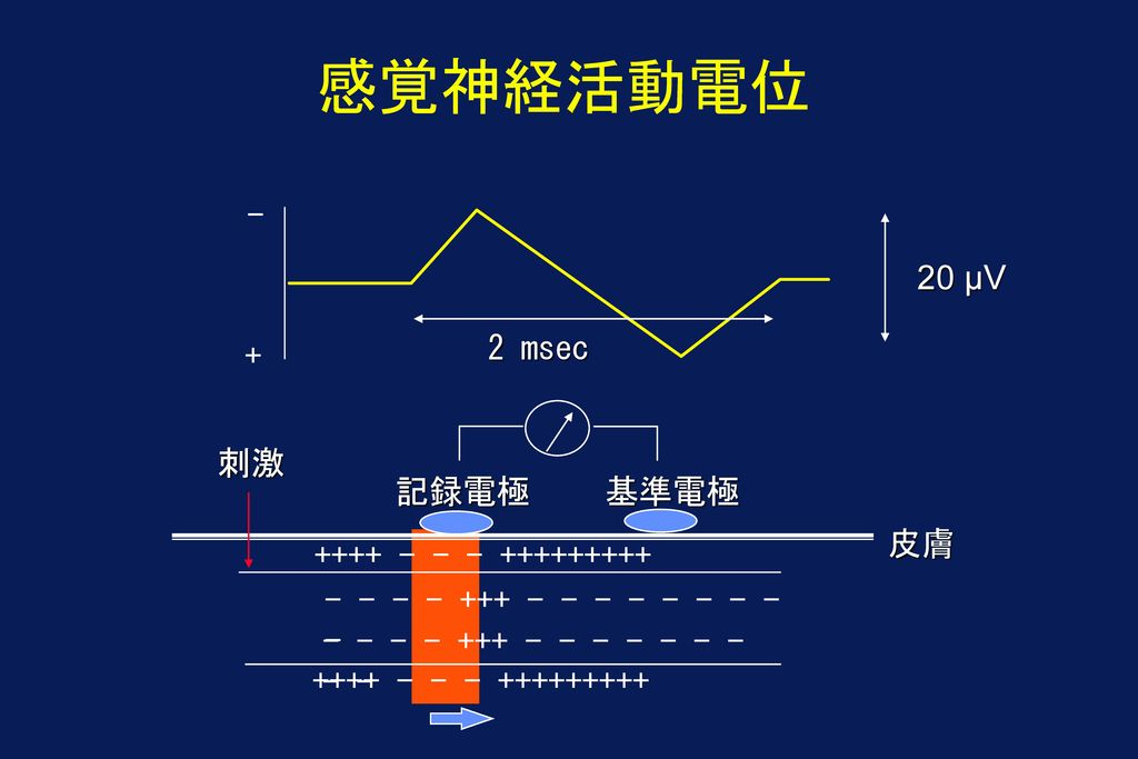 感覚神経活動電位 - 20 µV 2 msec + 刺激 記録電極 基準電極 皮膚 ++++ - - - +++++++++