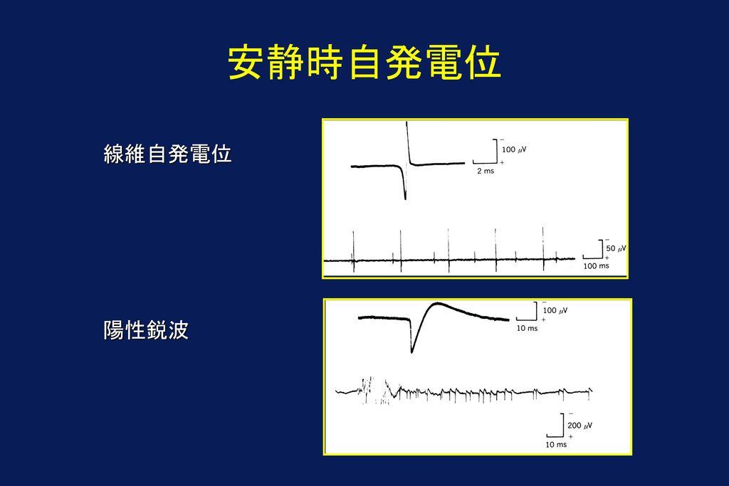 安静時自発電位 線維自発電位 陽性鋭波