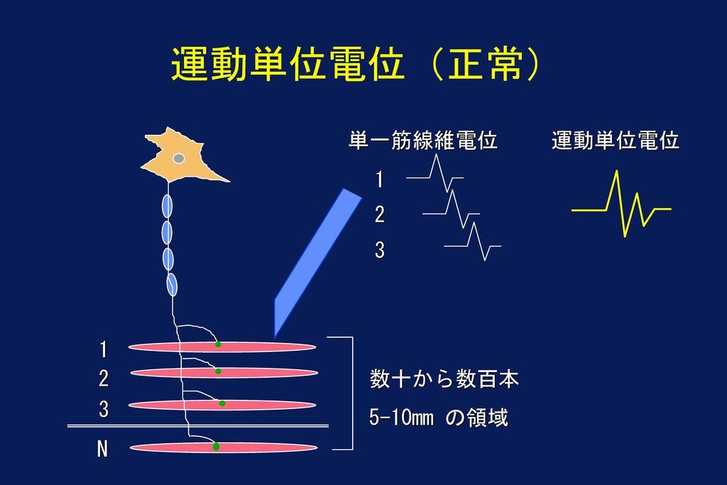 運動単位電位(正常) 単一筋線維電位 運動単位電位 1 2 3 1 2 数十から数百本 5-10mm の領域 3 N