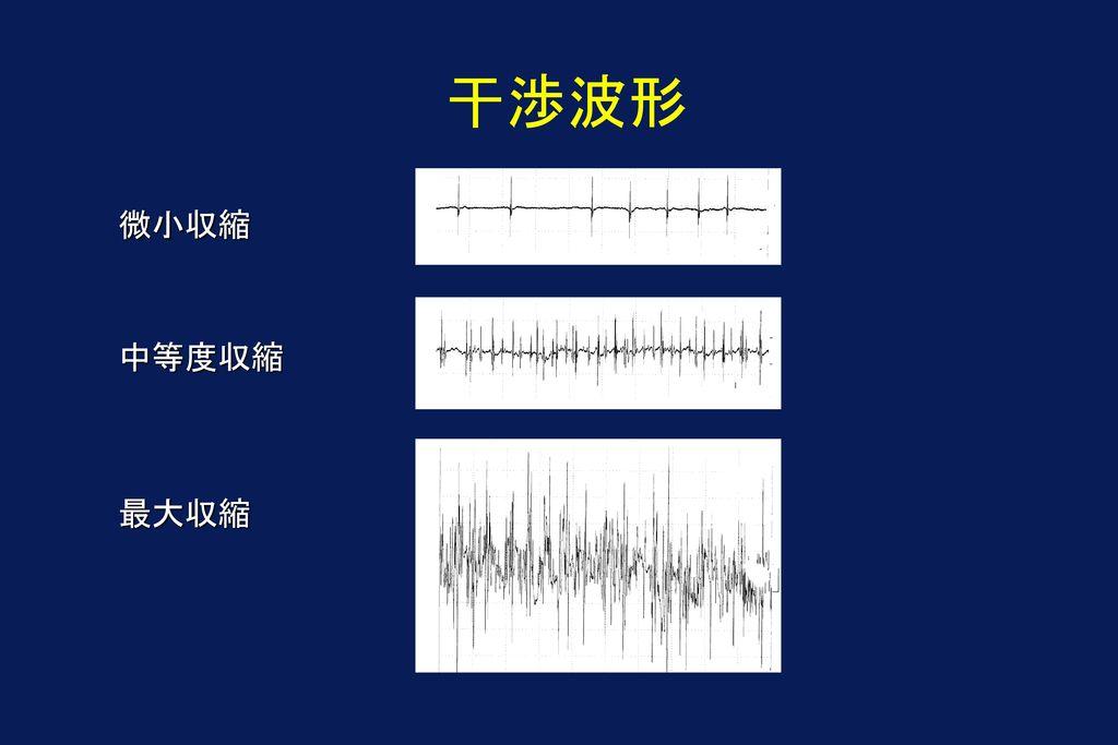 干渉波形 微小収縮 中等度収縮 最大収縮