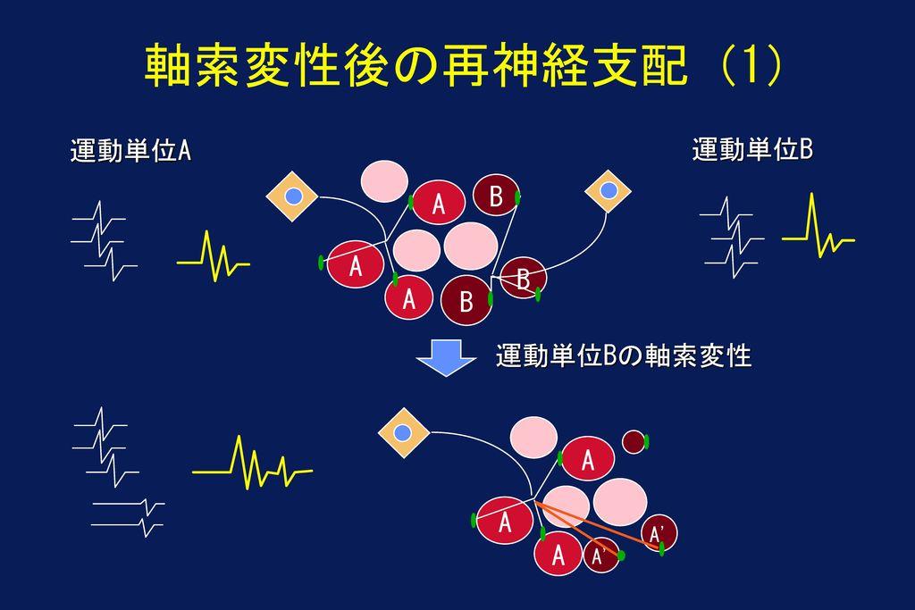 軸索変性後の再神経支配(1) 運動単位A 運動単位B B A A B A B 運動単位Bの軸索変性 A A A A A