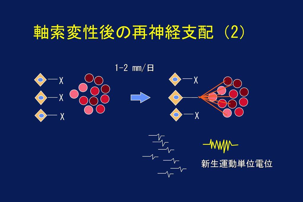 軸索変性後の再神経支配(2) 1-2 mm/日 X X X X X 新生運動単位電位