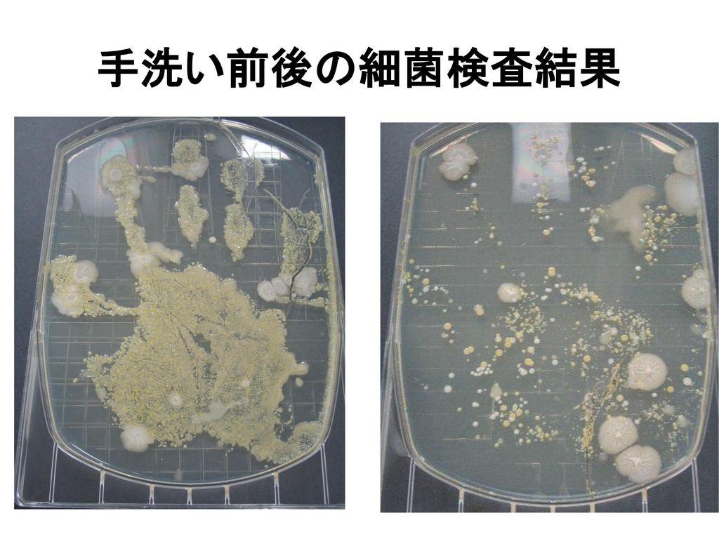 手洗い前後の細菌検査結果