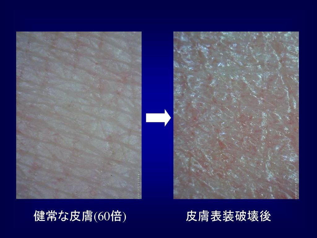 皮膚表装破壊後 健常な皮膚(60倍)