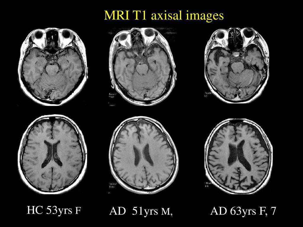 MRI T1 axisal images HC 53yrs F AD 51yrs M, AD 63yrs F, 7