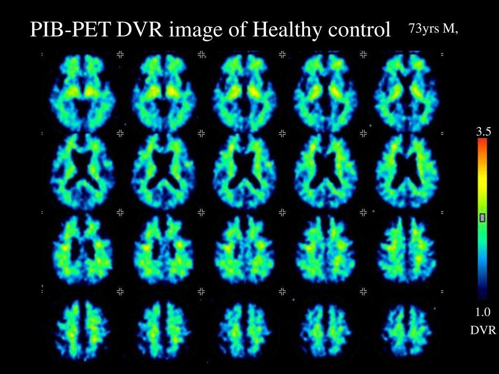PIB-PET DVR image of Healthy control