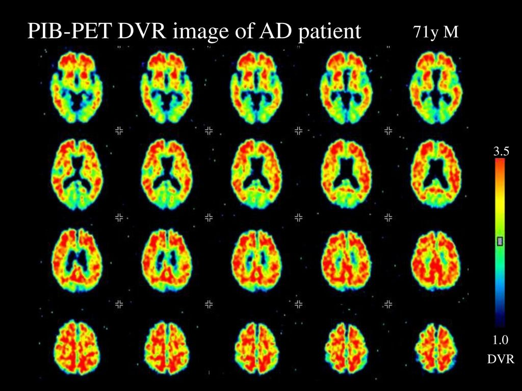 PIB-PET DVR image of AD patient