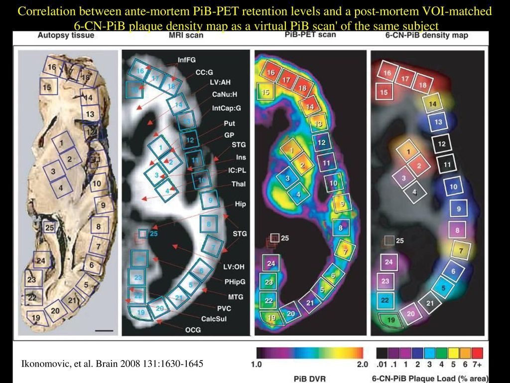 6-CN-PiB plaque density map as a virtual PiB scan of the same subject