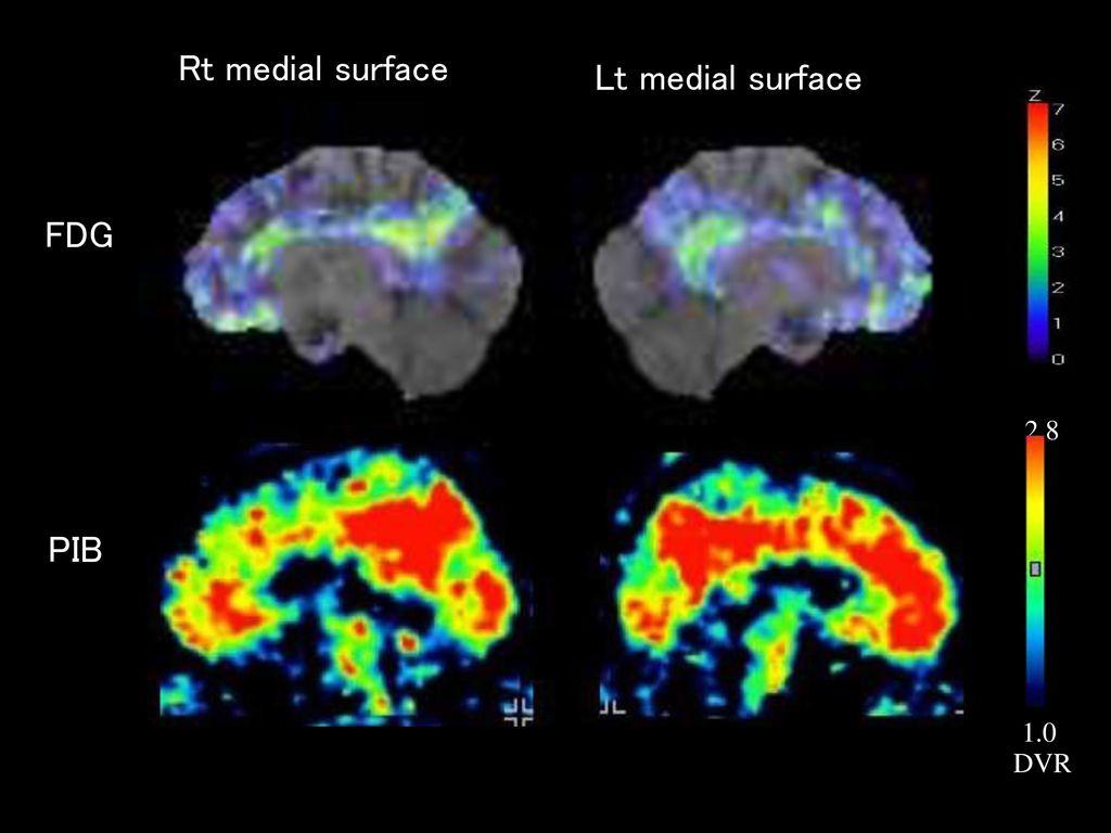 Rt medial surface Lt medial surface surface FDG 1.0 2.8 DVR PIB