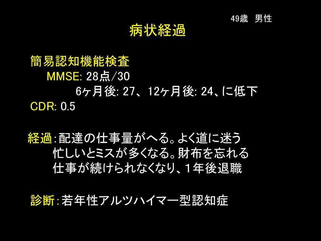 病状経過 簡易認知機能検査 MMSE: 28点/30 6ヶ月後: 27、 12ヶ月後: 24、に低下 CDR: 0.5