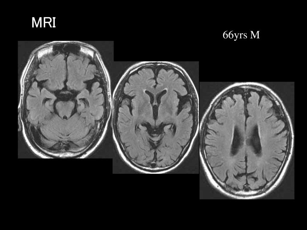 MRI MRI 66yrs M
