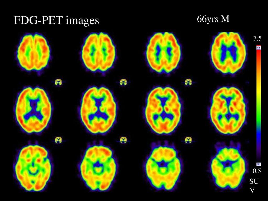 FDG-PET images 66yrs M FDG-PET images 7.5 0.5 SUV