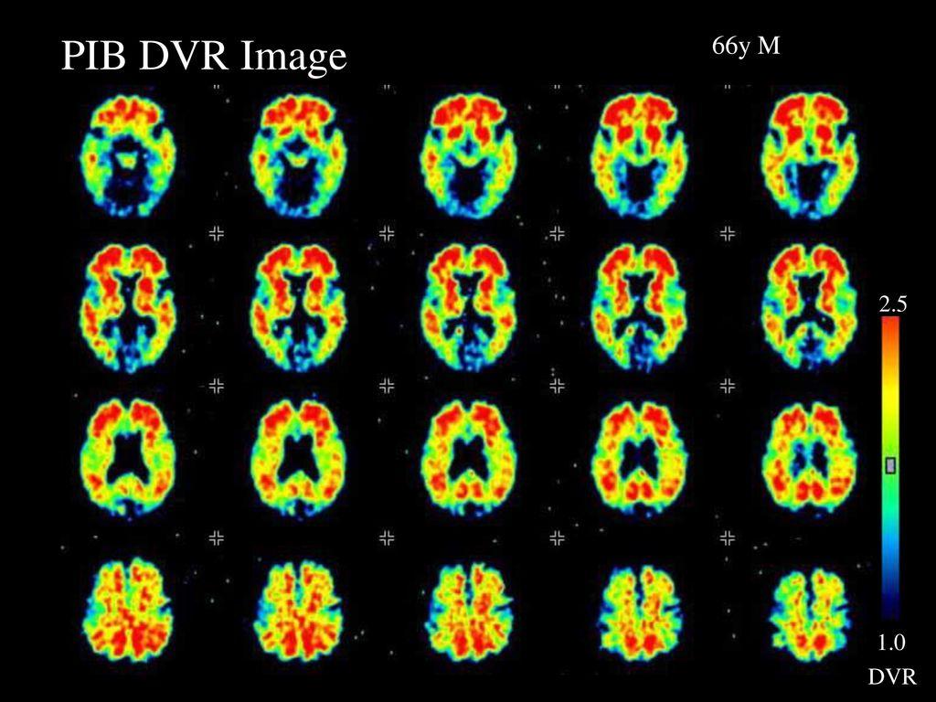 PIB DVR Image PIB DVR Image. 66y M. 1.0. 2.5. DVR. 赤くみえているのがPIB集積で、orbit-frontal cortex, frontal cortex, lateral temporal cortex, parieta cortex.