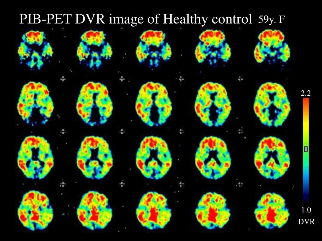 PIB-PET DVR image of Healthy control