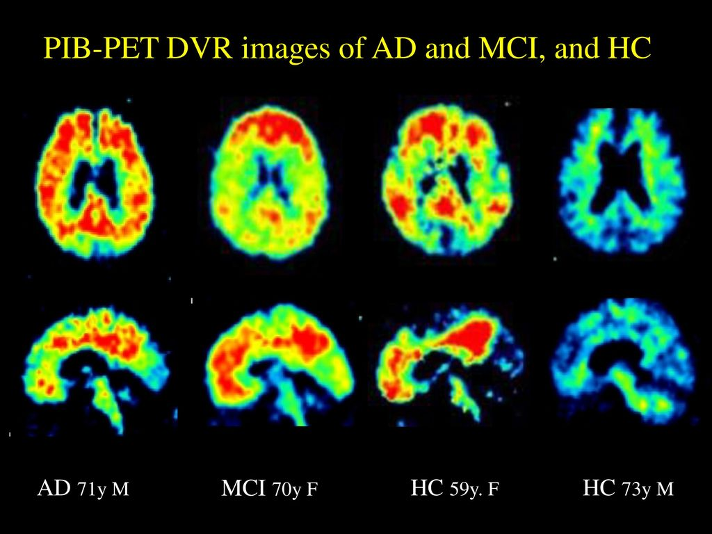PIB-PET DVR images of AD and MCI, and HC