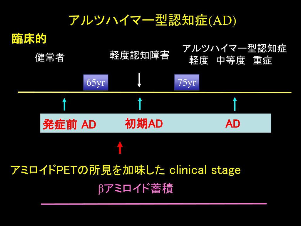 アルツハイマー型認知症(AD) 臨床的 発症前 AD 初期AD AD アミロイドPETの所見を加味した clinical stage