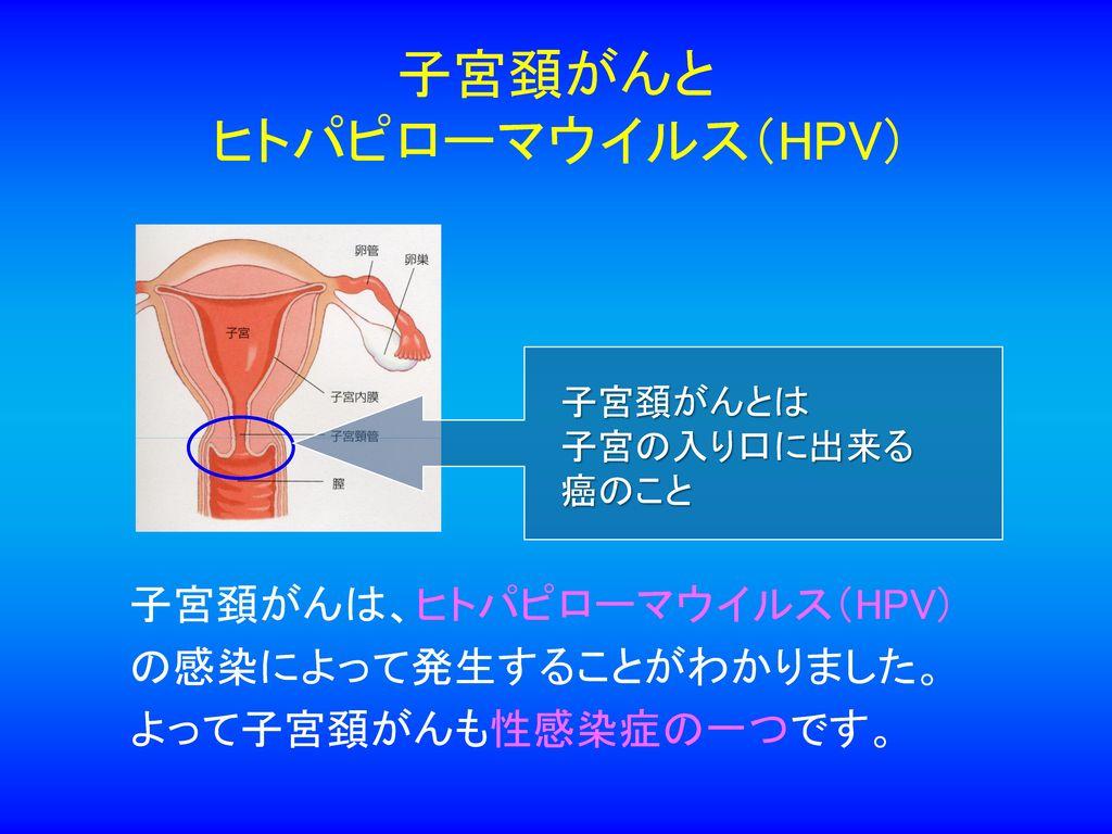 子宮頚がんと ヒトパピローマウイルス(HPV)