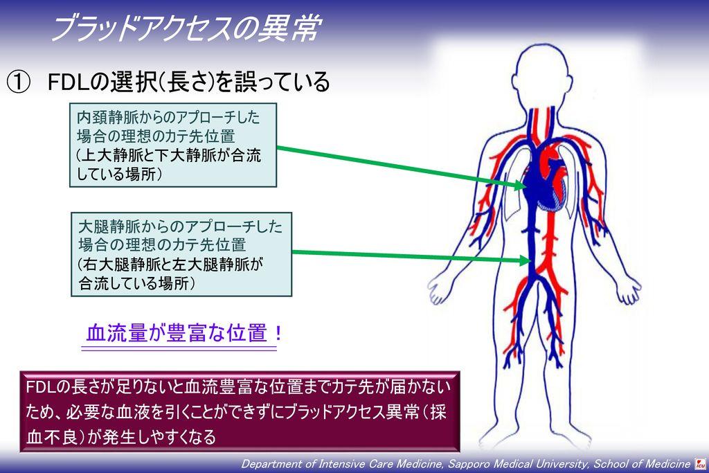 ブラッドアクセスの異常 ① FDLの選択(長さ)を誤っている 血流量が豊富な位置!