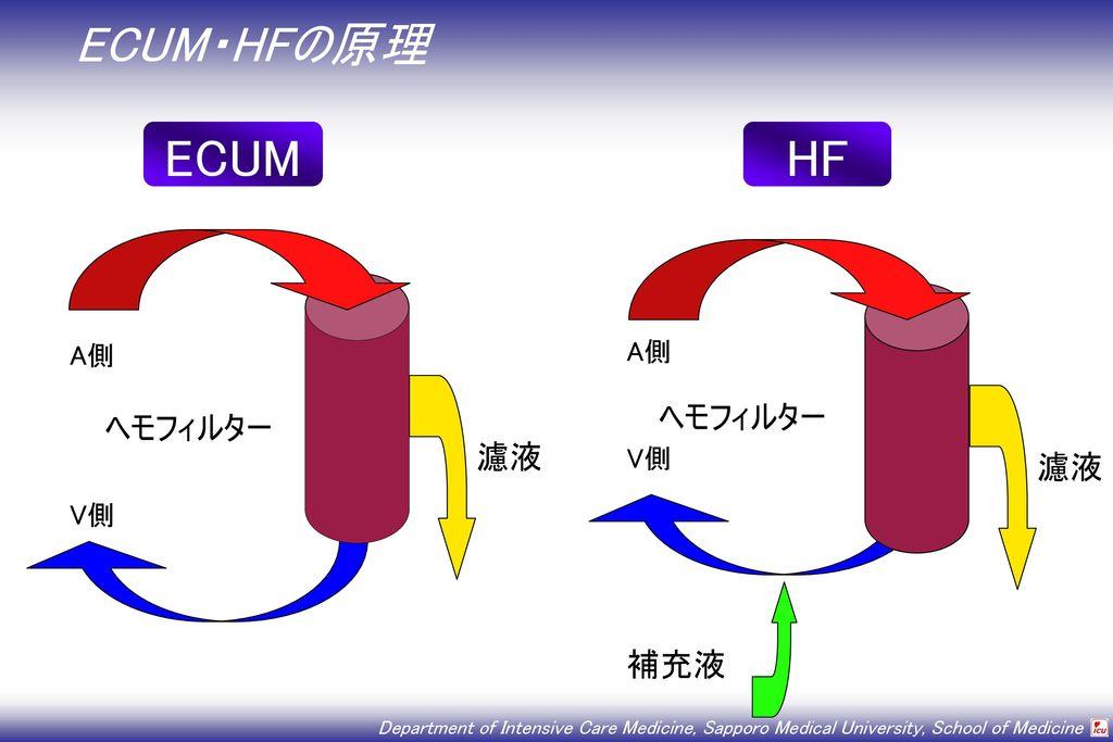 ECUM・HFの原理 ECUM HF V側 ヘモフィルター 濾液 A側 V側 ヘモフィルター 濾液 補充液 A側