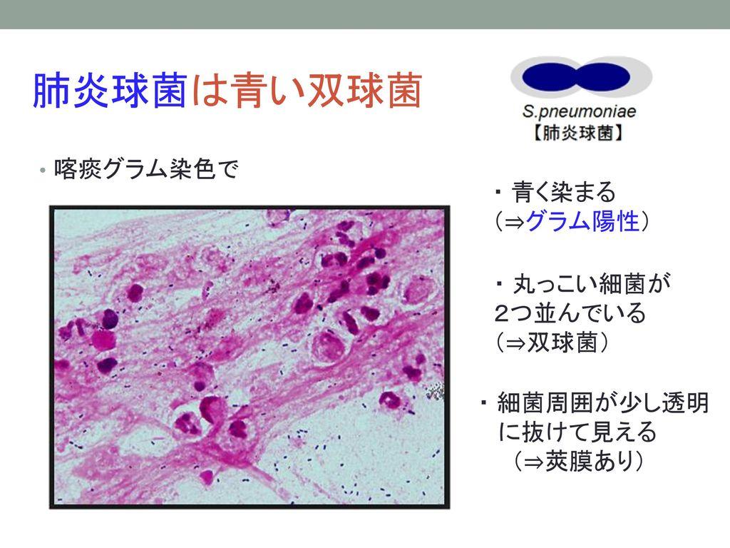 肺炎球菌は青い双球菌 喀痰グラム染色で ・ 青く染まる (⇒グラム陽性) ・ 丸っこい細菌が2つ並んでいる (⇒双球菌)