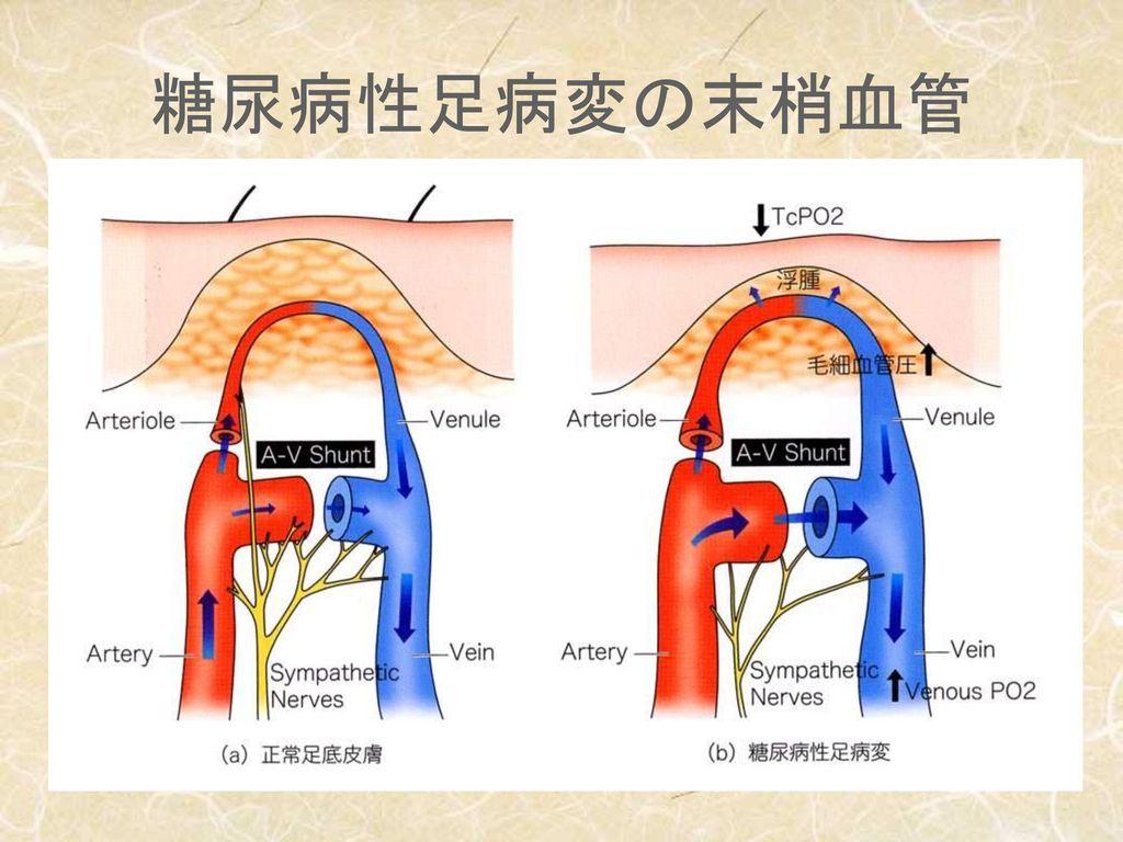 糖尿病性足病変の末梢血管