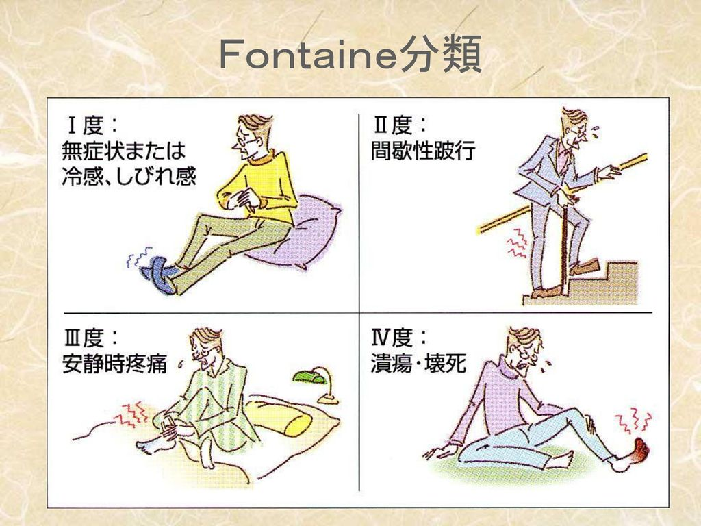 Fontaine分類
