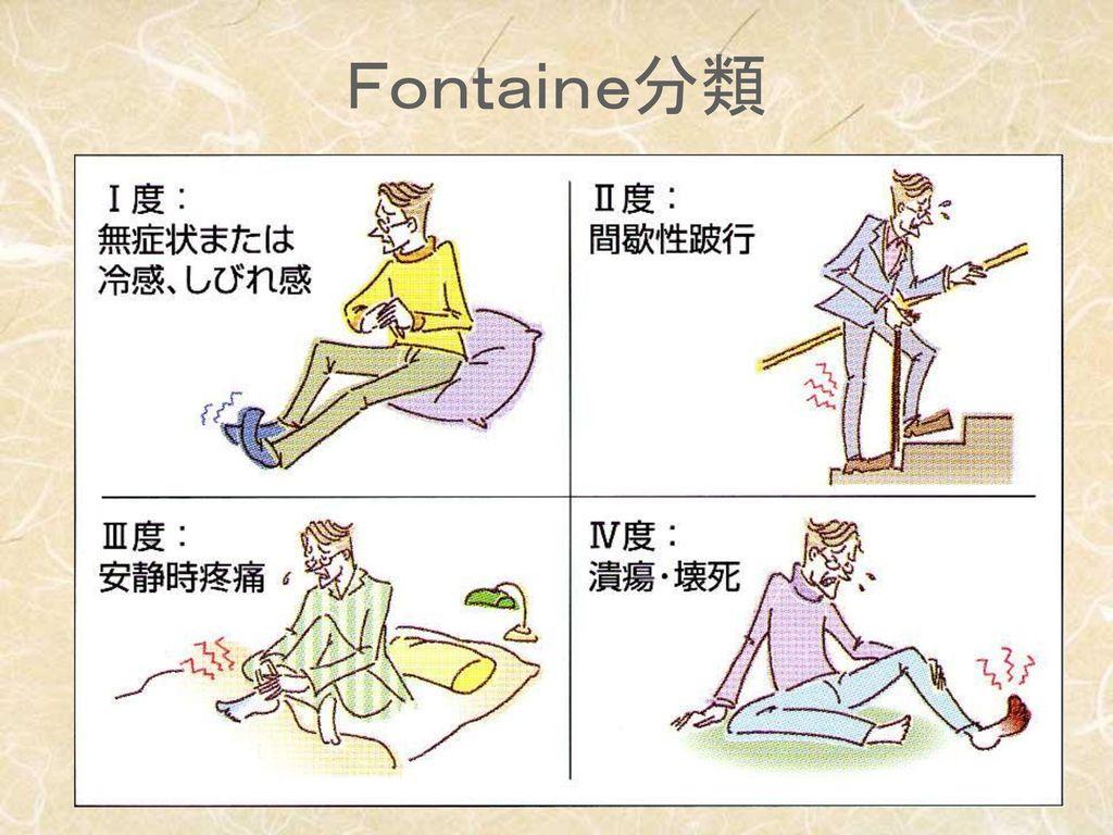 Fontaine分類