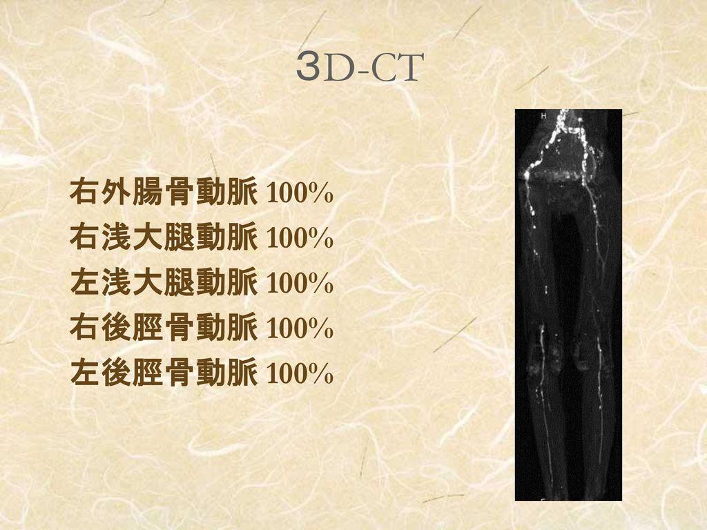 3D-CT 右外腸骨動脈 100% 右浅大腿動脈 100% 左浅大腿動脈 100% 右後脛骨動脈 100% 左後脛骨動脈 100%