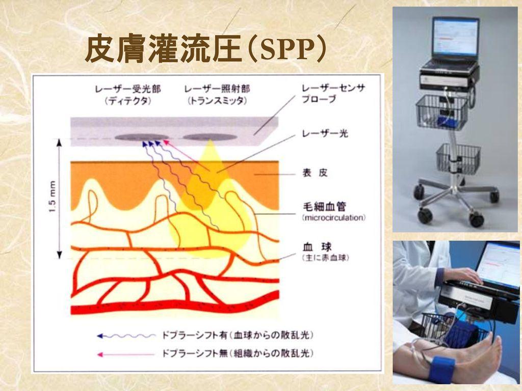 皮膚灌流圧(SPP)