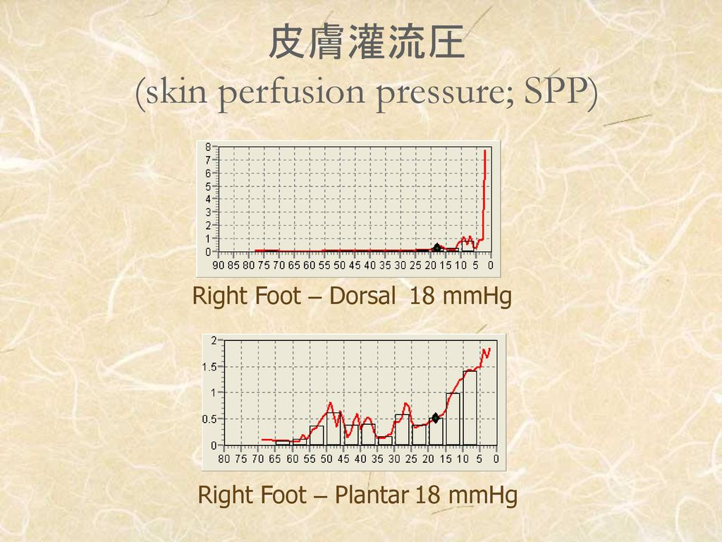 皮膚灌流圧 (skin perfusion pressure; SPP)