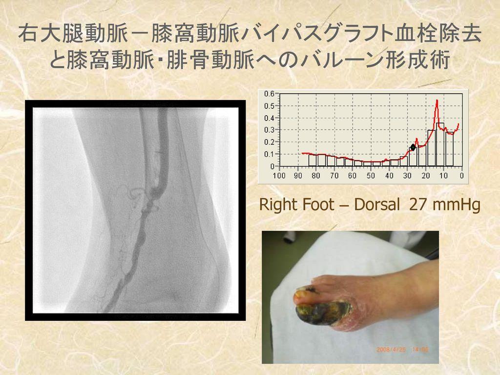 右大腿動脈-膝窩動脈バイパスグラフト血栓除去 と膝窩動脈・腓骨動脈へのバルーン形成術