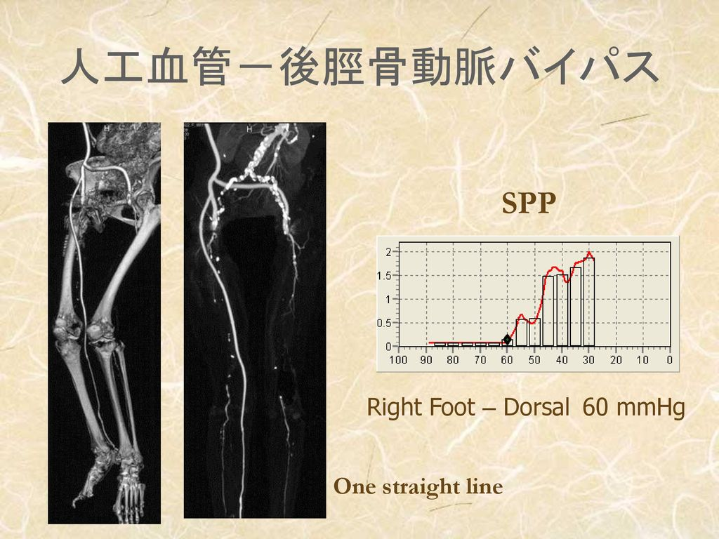 人工血管-後脛骨動脈バイパス SPP Right Foot – Dorsal 60 mmHg One straight line
