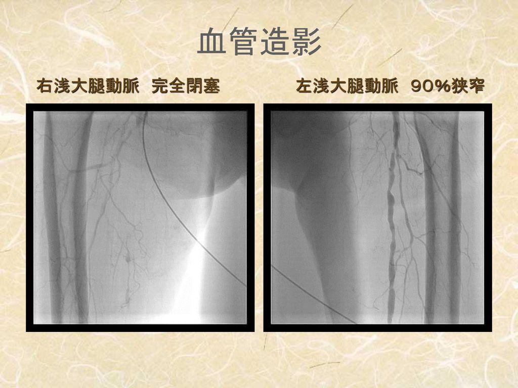 血管造影 右浅大腿動脈 完全閉塞 左浅大腿動脈 90%狭窄