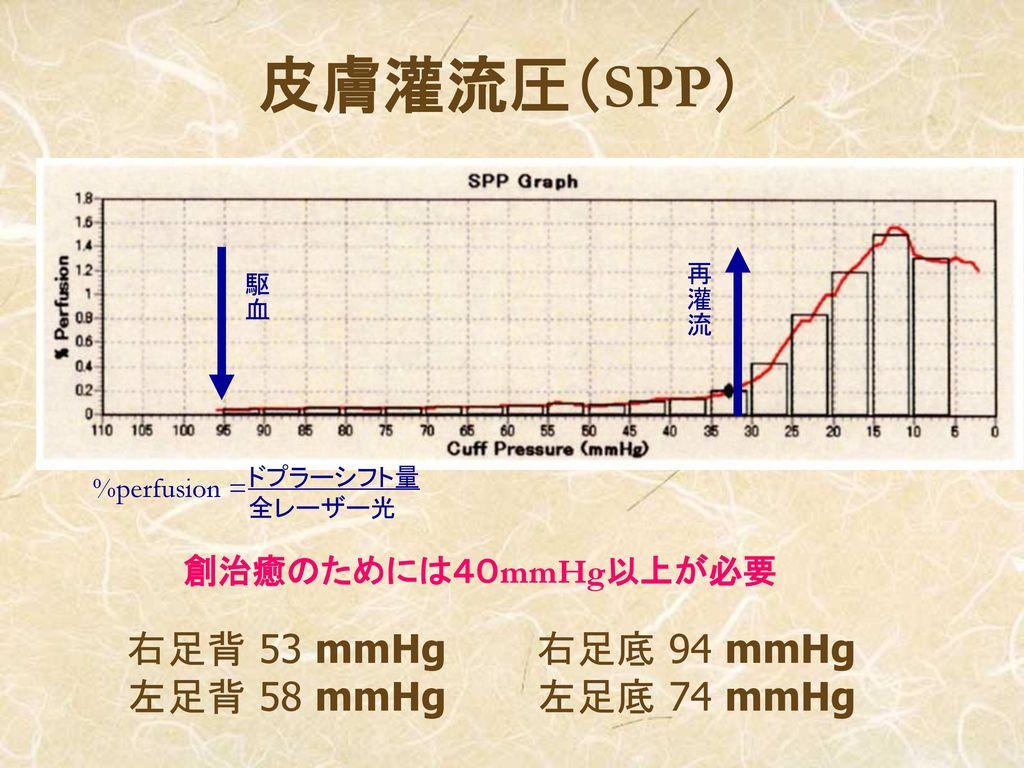 皮膚灌流圧(SPP) 右足背 53 mmHg 右足底 94 mmHg 左足背 58 mmHg 左足底 74 mmHg