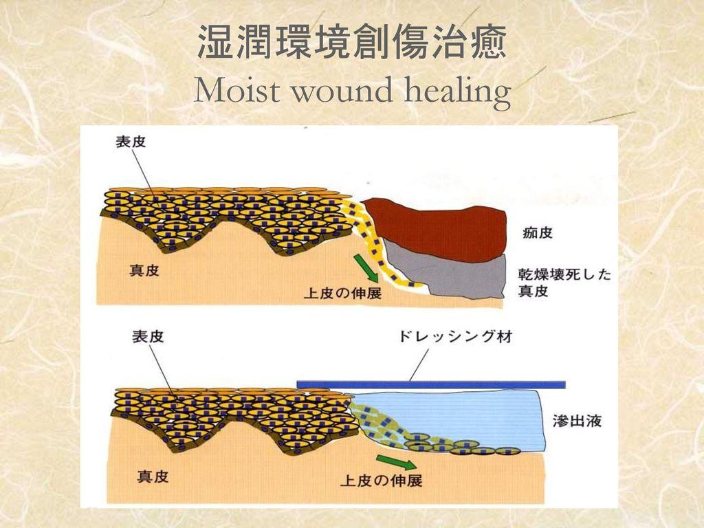 湿潤環境創傷治癒 Moist wound healing