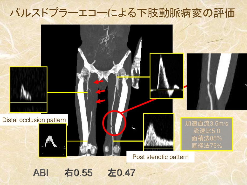 Distal occlusion pattern