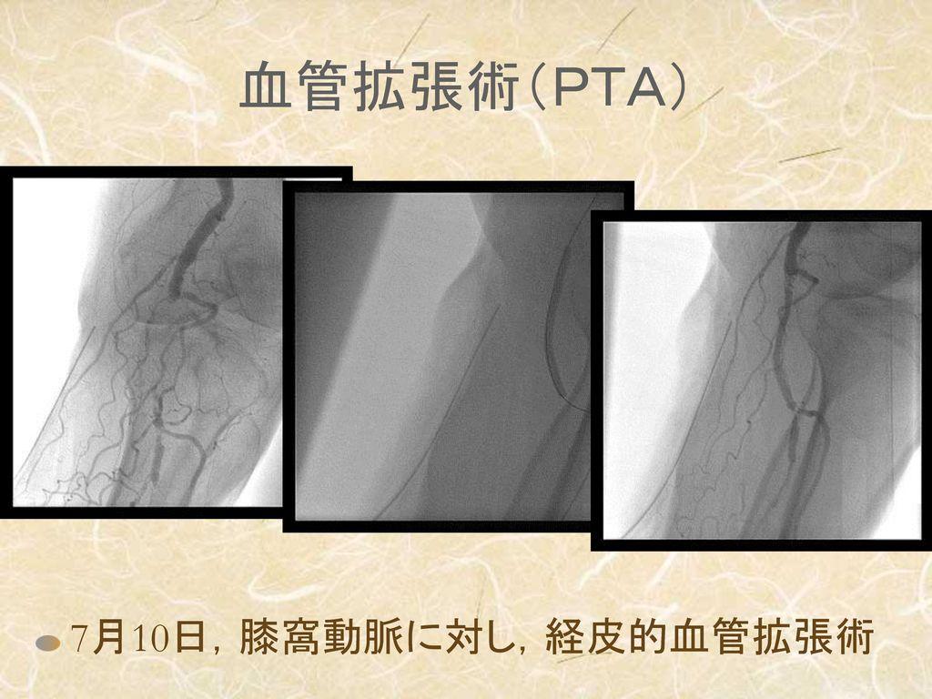 血管拡張術(PTA) 7月10日,膝窩動脈に対し,経皮的血管拡張術