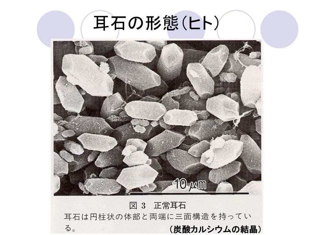 耳石の形態(ヒト) (炭酸カルシウムの結晶)
