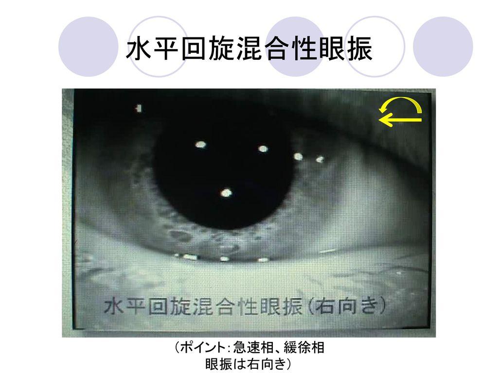 水平回旋混合性眼振 (ポイント:急速相、緩徐相 眼振は右向き)